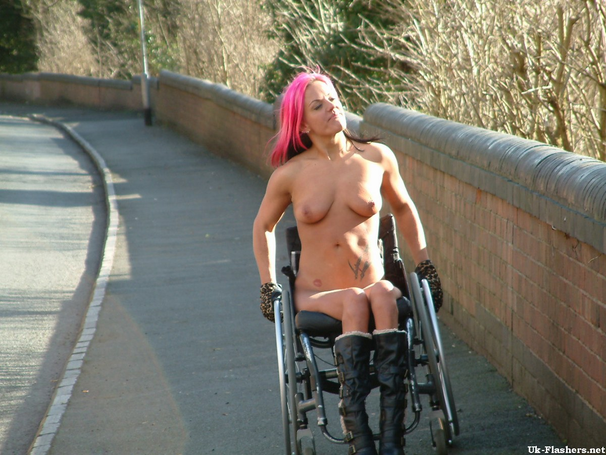 handicaped girl nude photo